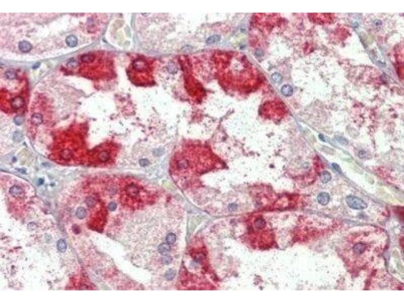 Immunohistochemistry (Paraffin-embedded Sections) (IHC (p)) image for anti-clathrin, Heavy Chain (Hc) (CLTC) (C-Term) antibody (ABIN4298862)