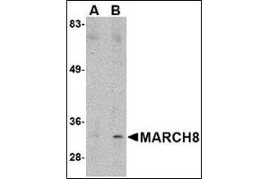 Western Blotting (WB) image for anti-Membrane-Associated Ring Finger (C3HC4) 8, E3 Ubiquitin Protein Ligase (MARCH8) (C-Term) antibody (ABIN500234)
