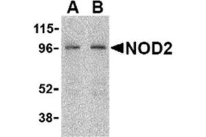 Image no. 2 for anti-Nucleotide-Binding Oligomerization Domain Containing 2 (NOD2) (C-Term) antibody (ABIN372922)