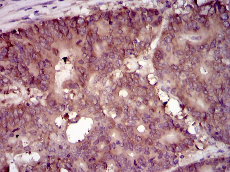 Immunohistochemistry (IHC) image for anti-EIF4B antibody (Eukaryotic Translation Initiation Factor 4B) (ABIN969517)