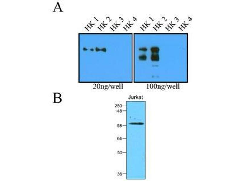 Western Blotting (WB) image for anti-Hexokinase 2 antibody (HK2) (AA 1-917) (ABIN263918)