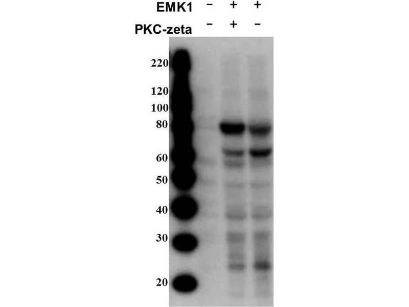 Rabbit anti-Human MARK2 antibody (ABIN129661)