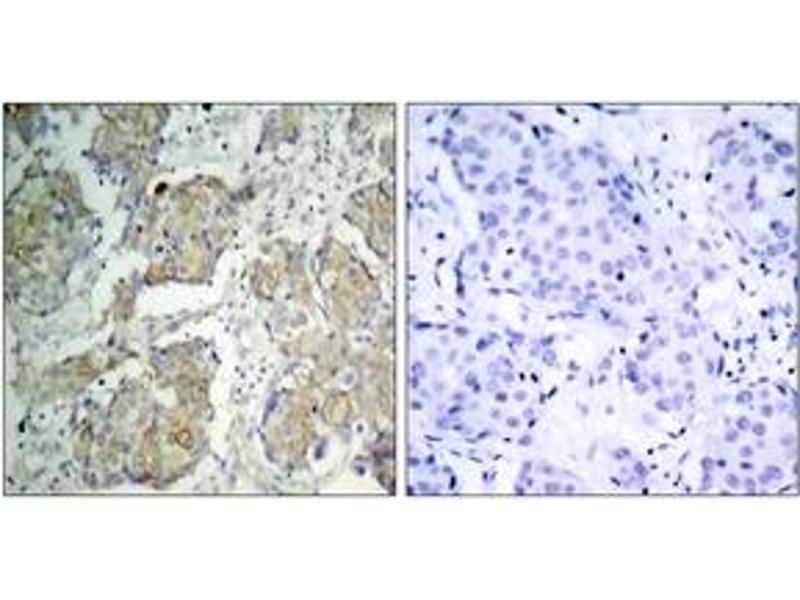Immunohistochemistry (IHC) image for anti-Kinase insert Domain Receptor (A Type III Receptor tyrosine Kinase) (KDR) (AA 1180-1229), (pTyr1214) antibody (ABIN1531999)