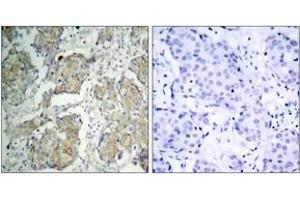 Immunohistochemistry (IHC) image for anti-VEGFR2 antibody (Kinase insert Domain Receptor (A Type III Receptor tyrosine Kinase)) (pTyr1214) (ABIN1531999)