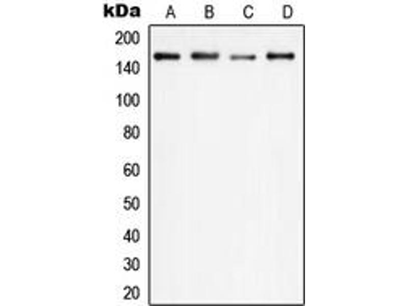 Western Blotting (WB) image for anti-Phospholipase C gamma 1 antibody (phospholipase C, gamma 1) (Center) (ABIN2706827)