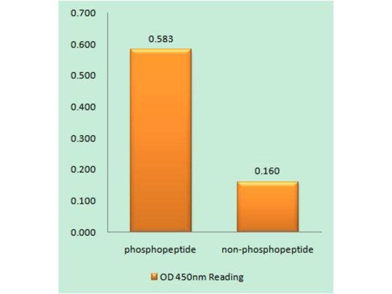 ELISA image for anti-Insulin-Like Growth Factor 1 Receptor (IGF1R) (C-Term), (pTyr1346), (pTyr1349), (pTyr1352) antibody (ABIN1847558)