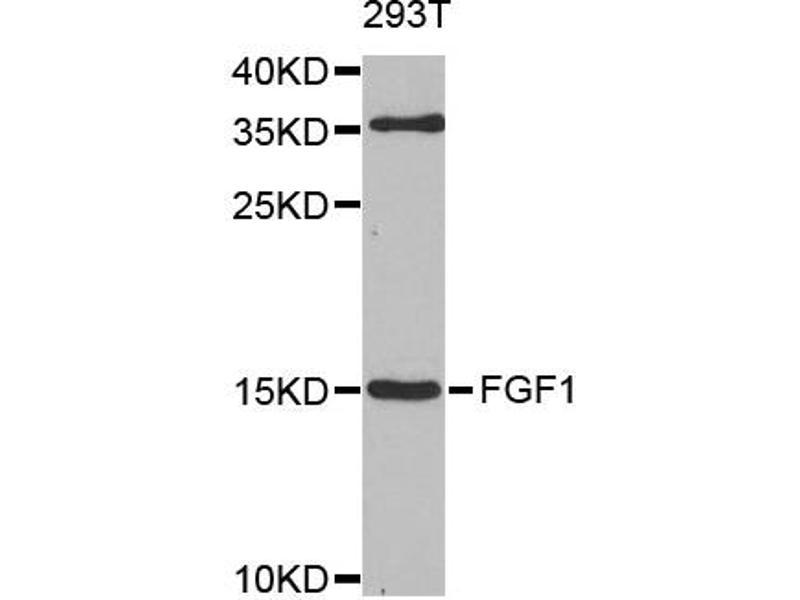 Image no. 2 for anti-Fibroblast Growth Factor 1 (Acidic) (FGF1) antibody (ABIN6566640)
