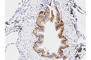Image no. 3 for anti-Aldehyde Dehydrogenase 3 Family, Member A1 (ALDH3A1) (AA 1-453) antibody (ABIN2691440)