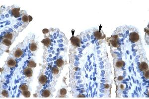 Image no. 3 for anti-Zinc Finger Protein 70 (ZNF70) (N-Term) antibody (ABIN2774984)