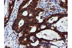 Image no. 16 for anti-Chromosome 1 Open Reading Frame 50 (C1ORF50) antibody (ABIN1497033)