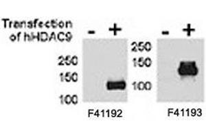 Image no. 2 for anti-Histone Deacetylase 9 (HDAC9) (AA 2-32) antibody (ABIN3031237)