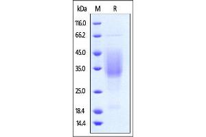Image no. 1 for Hepatitis A Virus Cellular Receptor 2 (TIM 3) (AA 22-200) (Active) protein (Strep Tag) (ABIN4949146)