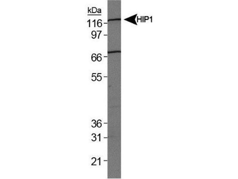 Western Blotting (WB) image for anti-Intraflagellar Transport 57 Homolog (Chlamydomonas) (IFT57) antibody (ABIN152547)