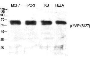 Western Blotting (WB) image for anti-YAP1 antibody (Yes-Associated Protein 1) (pSer127) (ABIN3182592)