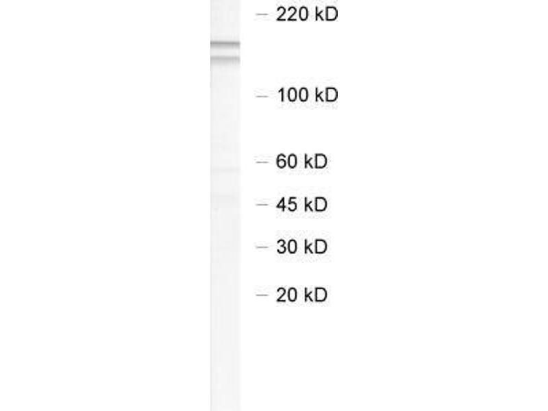 Western Blotting (WB) image for anti-Neural Precursor Cell Expressed, Developmentally Down-Regulated 4-Like (NEDD4L) antibody (ABIN2690521)
