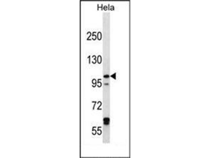 Western Blotting (WB) image for anti-Iron-Responsive Element Binding Protein 2 (IREB2) (AA 208-238), (Middle Region) antibody (ABIN952944)