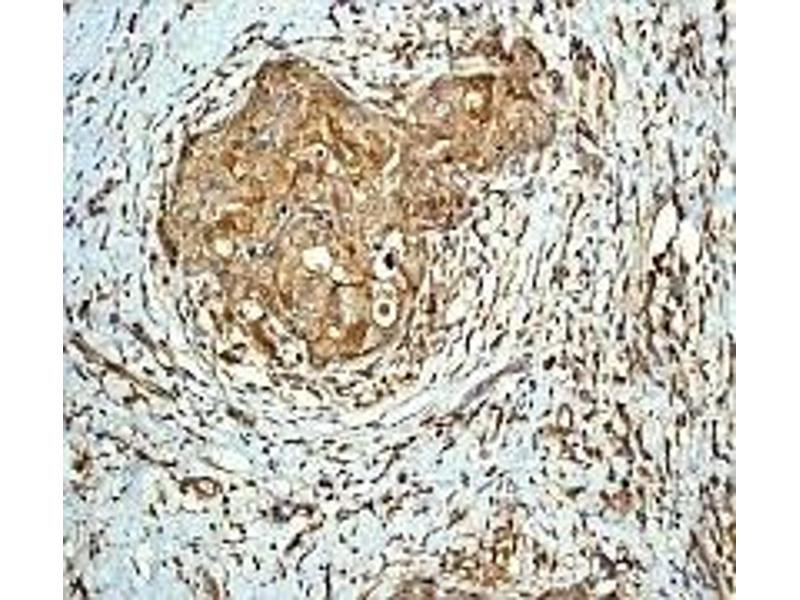 Immunohistochemistry (IHC) image for anti-PAK2 antibody (P21-Activated Kinase 2) (N-Term) (ABIN256878)