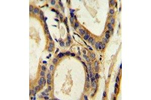 Image no. 1 for anti-Chemokine (C-C Motif) Ligand 4 (CCL4) (AA 22-48) antibody (ABIN3030486)
