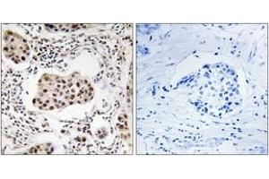 Image no. 1 for anti-Protein Phosphatase 1, Regulatory (Inhibitor) Subunit 11 (PPP1R11) (AA 71-120) antibody (ABIN1535219)