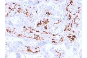 Image no. 1 for anti-Coagulation Factor XIII, A1 Polypeptide (F13A1) (AA 46-181) antibody (ABIN6939364)