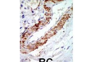 Image no. 2 for anti-Carnitine O-Octanoyltransferase (CROT) (AA 414-445), (C-Term) antibody (ABIN5534058)
