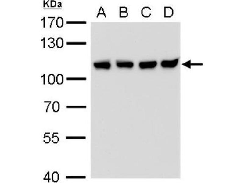 Western Blotting (WB) image for anti-CSE1L/CAS/Exportin-2 (Center) antibody (ABIN4265151)