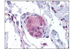 Immunohistochemistry (Paraffin-embedded Sections) (IHC (p)) image for anti-Nucleotide-Binding Oligomerization Domain Containing 1 (NOD1) (C-Term) antibody (ABIN784103)