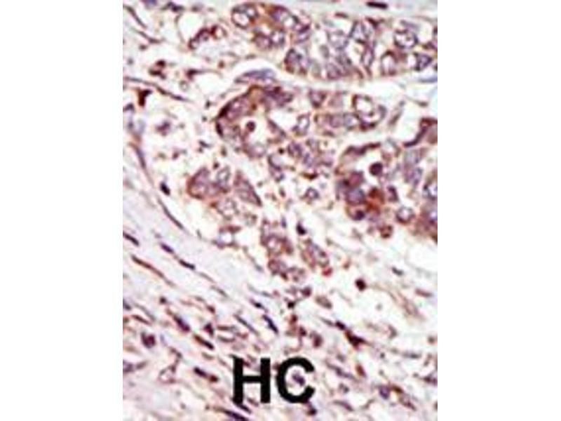 Immunohistochemistry (IHC) image for anti-CAMK1G antibody (Calcium/calmodulin-Dependent Protein Kinase IG) (AA 420-450) (ABIN391376)