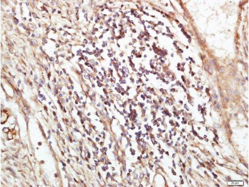 Immunohistochemistry (Paraffin-embedded Sections) (IHC (p)) image for anti-XPC antibody (Xeroderma Pigmentosum, Complementation Group C) (AA 880-920) (ABIN719171)