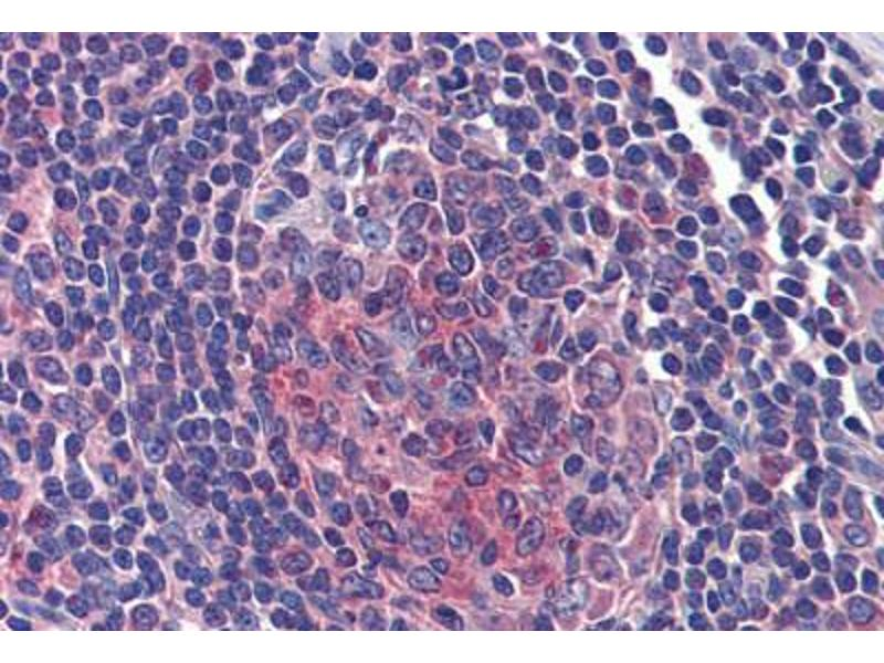 Image no. 3 for anti-Fermitin Family Member 3 (FERMT3) (C-Term) antibody (ABIN462492)