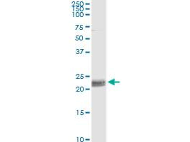 Immunoprecipitation (IP) image for anti-CD8a Molecule (CD8A) (AA 1-235), (full length) antibody (ABIN514147)