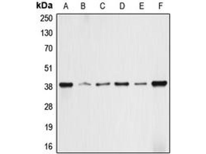 Image no. 2 for anti-Aldolase A, Fructose-Bisphosphate (ALDOA) (N-Term) antibody (ABIN2707322)