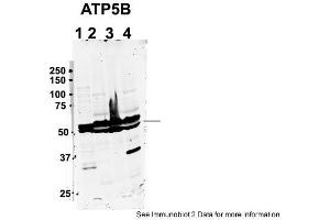 Image no. 2 for anti-ATP Synthase, H+ Transporting, Mitochondrial F1 Complex, beta Polypeptide (ATP5B) (C-Term) antibody (ABIN2783269)