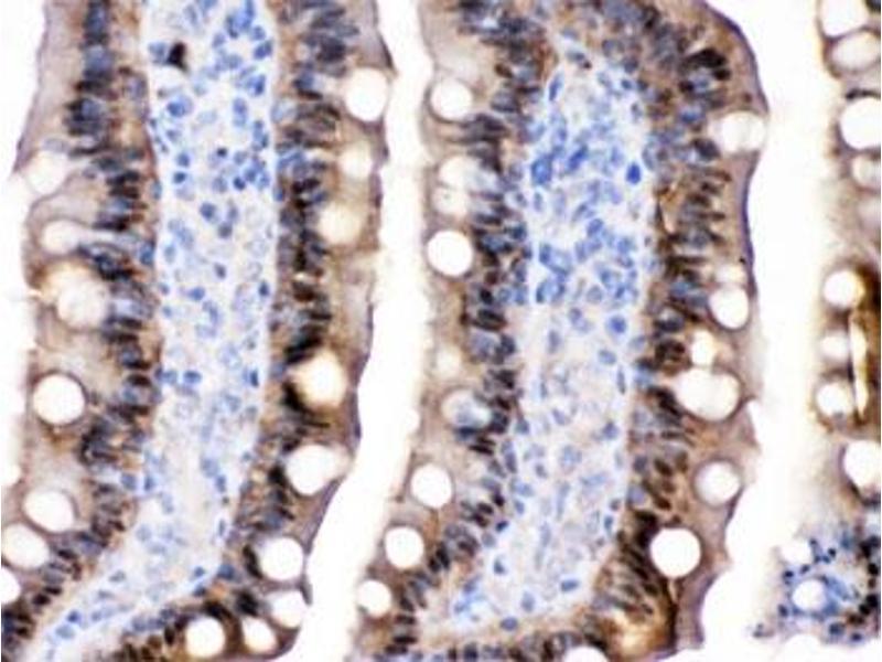 Image no. 3 for anti-FABP2 (Intestinal) antibody (ABIN4950974)