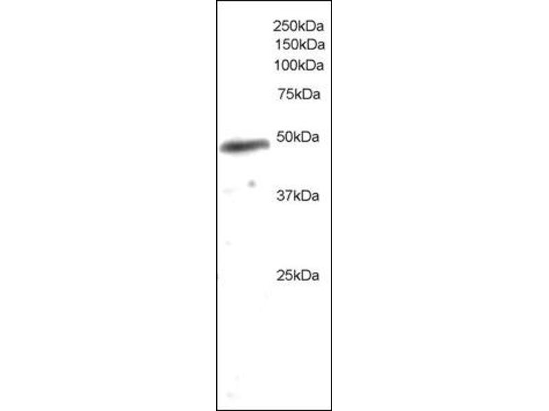 image for anti-Neutrophil Cytosol Factor 1 (NCF1) (C-Term) antibody (ABIN372580)
