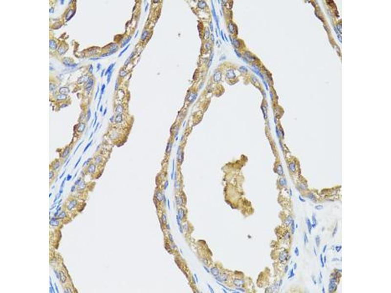Immunohistochemistry (IHC) image for anti-Cytochrome P450, Family 19, Subfamily A, Polypeptide 1 (CYP19A1) antibody (ABIN1872157)