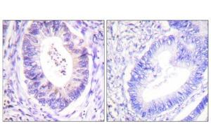 Image no. 3 for anti-Ribosomal Protein S6 Kinase, 90kDa, Polypeptide 3 (RPS6KA3) (Thr573) antibody (ABIN1847962)
