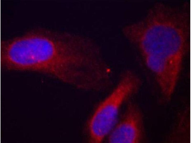 Immunofluorescence (IF) image for anti-Cas-Br-M (Murine) Ecotropic Retroviral Transforming Sequence (CBL) (pTyr700) antibody (ABIN3020049)