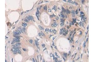 Image no. 2 for anti-Growth Hormone Releasing Hormone (GHRH) (AA 19-108) antibody (ABIN1172887)