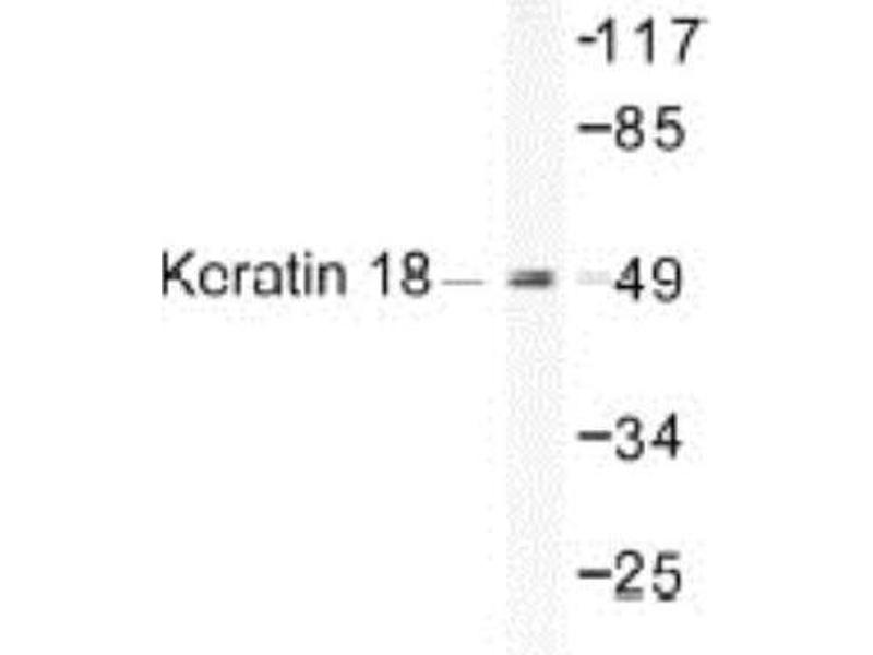 Western Blotting (WB) image for anti-KRT18 antibody (Keratin 18) (ABIN4302591)