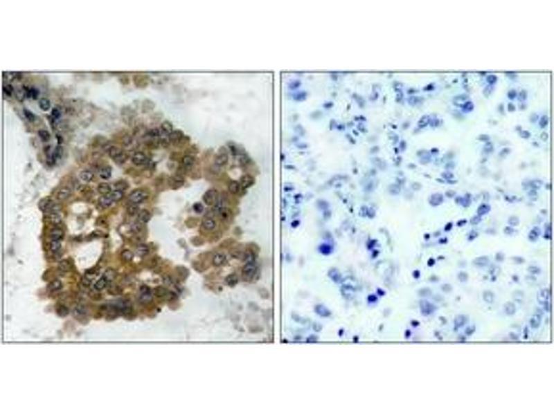 Immunohistochemistry (IHC) image for anti-AKT2 antibody (V-Akt Murine Thymoma Viral Oncogene Homolog 2) (pSer474) (ABIN1531768)