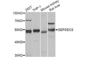 Image no. 1 for anti-Sep (O-phosphoserine) tRNA:Sec (Selenocysteine) tRNA Synthase (SEPSECS) antibody (ABIN6570923)