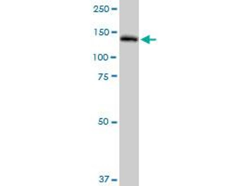 Western Blotting (WB) image for anti-Phospholipase C gamma 2 antibody (PLCG2) (AA 1-1265) (ABIN518950)