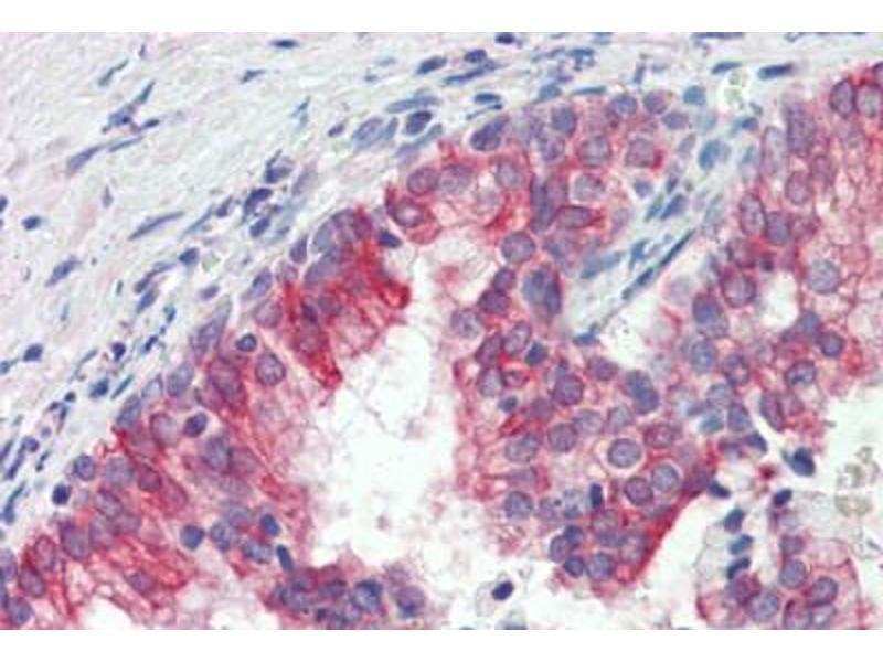 Immunohistochemistry (Paraffin-embedded Sections) (IHC (p)) image for anti-Receptor Tyrosine Kinase-Like Orphan Receptor 1 (ROR1) antibody (ABIN462403)