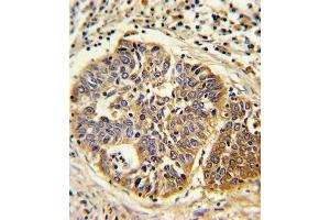 Image no. 2 for anti-3-Hydroxy-3-Methylglutaryl-CoA Synthase 1 (Soluble) (HMGCS1) (AA 442-470), (C-Term) antibody (ABIN5533622)