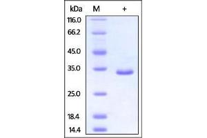 Image no. 1 for PSME3 (PSME3) (AA 1-254) protein (His tag) (ABIN2870689)