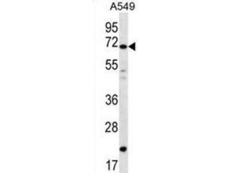 Image no. 2 for anti-Deleted In Azoospermia 4 (DAZ4) antibody (ABIN2996817)