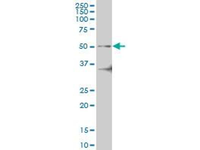 Image no. 2 for anti-Interleukin-1 Receptor-Associated Kinase 4 (IRAK4) (AA 1-130) antibody (ABIN599243)