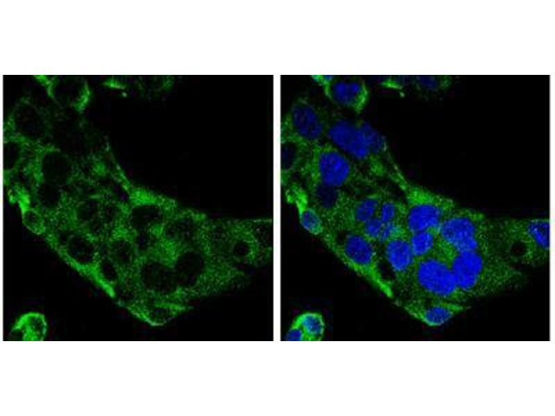 Immunofluorescence (IF) image for anti-Complement Component C9 (C9) (Center) antibody (ABIN4299959)