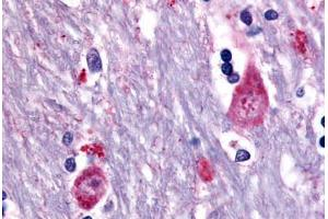 Immunohistochemistry (Paraffin-embedded Sections) (IHC (p)) image for anti-Cholinergic Receptor, Muscarinic 3 (CHRM3) (Cytoplasmic Domain) antibody (ABIN213499)